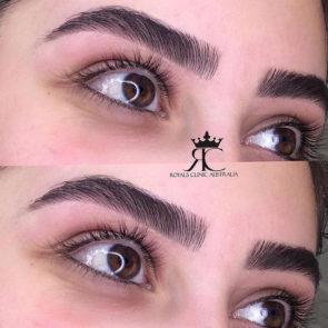 eyebrowshaping